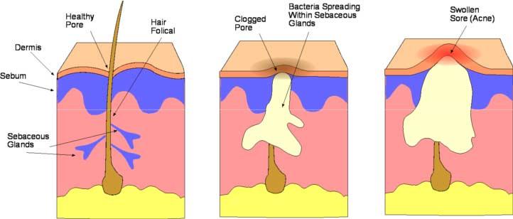 Acneea. Terapii alternative (1)